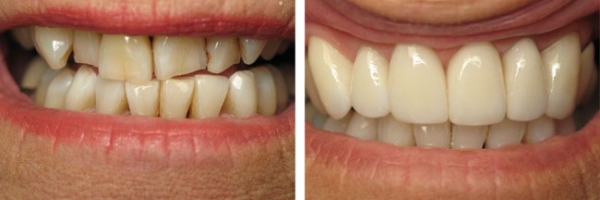 This patient improved her smile with crowns for the front six teeth and whitening the lower teeth